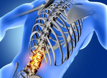 Mal di schiena e dolori diffusi